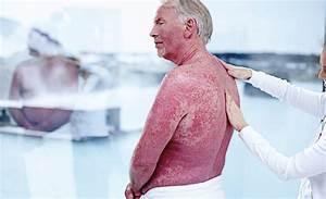 Бальнеологическое лечение псориаза