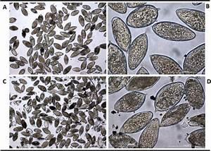 Eggs Of Schistosoma Haematobium These Schistosome Eggs