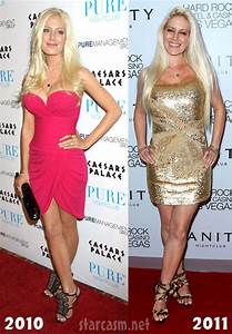 PHOTOS Heidi Montag - how is her face holding up after ...