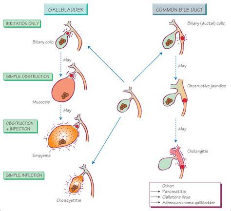 gallstone disease basicmedical key