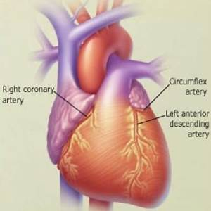 coronary heart disease essay     essay on ischemic heart disease examples and samples an essay on the  importance of doing homework