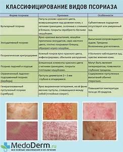 Лечение псориаза с пищевой содой