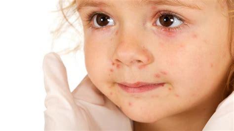 mycose du siege chez le bebe erytheme fessier photo