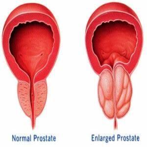 Enlarged Prostate  Prostate Diseases Enlarged prostate