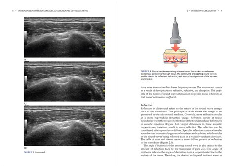[pdf] Introduction to Musculoskeletal Ultrasound: Getting ...