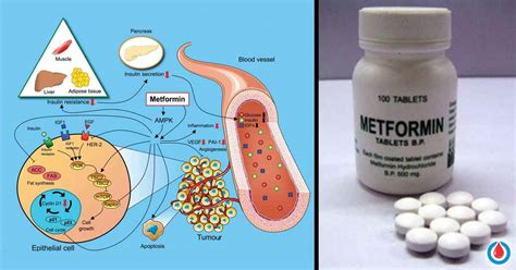 perks  side effects   metformin  diabetes
