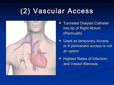 Developing A Novel Dialysis Educational Resource For