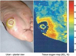 Tissue Oxygen Map Of Skin At And Surrounding A Foot Ulcer
