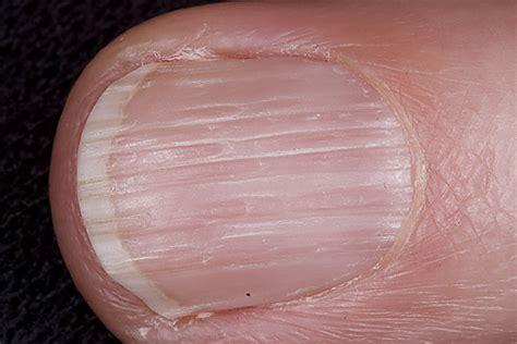 Vertical Lines In Nails Vitamin Deficiency