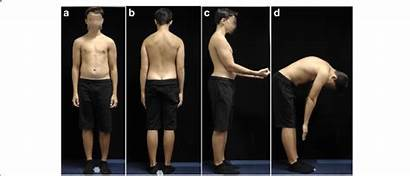 Boy Posture Structural Hyperkyphosis Side Forward Thoracic