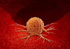 Pancreatic, Cancer, Denver, Malignancy, Pancreas
