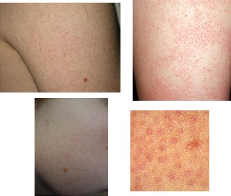 Do You Have Bumps On Your Arms Maybe Its Keratosis