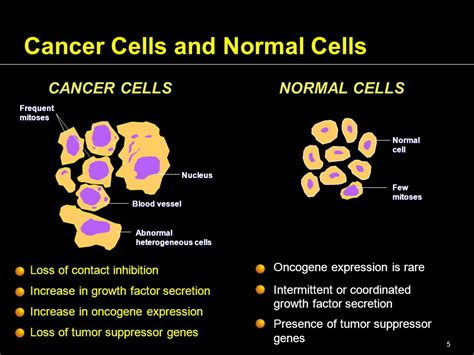 Tumor Biology And Kinetics Introduction Of