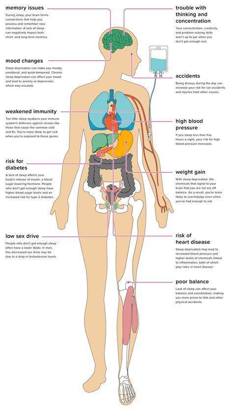 effects  sleep deprivation   body
