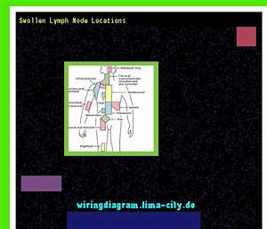 Swollen Lymph Node Locations  Wiring Diagram 18522