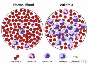 What Are The Different Types Of Myeloid Leukemia