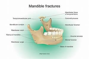 Mandible Fractures Vector Anatomy Human Stock Illustration