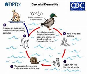 CDC - Cercarial Dermatitis - Biology Cercarial Dermatitis