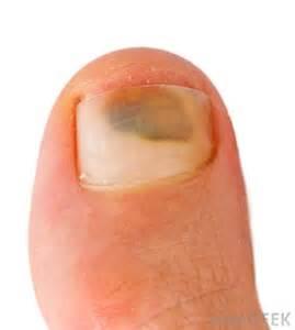 bruising under toenails healthtap