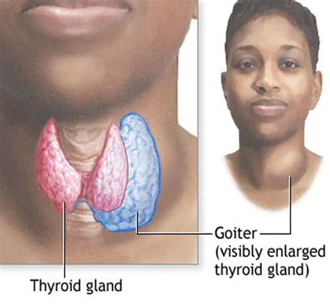 Goiteriodine History # 3  Thyroid Center Of Santa Monica. Shredding Services Dallas Pearl Dental Clinic. Ants Extermination Methods Example Of Hybrid. Ancient Egyptian Natural Resources. Vehicle Storage Las Vegas Human Resource Data