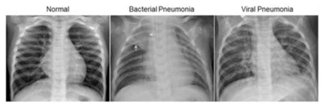 wsc  machine learning  diagnose pneumonia  chest  rays  technical