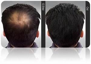 Transplantace vlasů recenze
