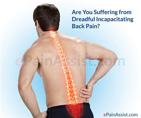 Incapacitating Back Pain Due To Failed Back Syndrome. Smart Home Starter Kit Mealpay Payment System. Corporate Internet Service Providers. Lottery Lump Sum Vs Annuity Prices For Lasik. Video Game Stocks To Buy Fancy Website Design. Ashford University Online Degree. Lakeview Health Jacksonville Fl. Pro Guard Pest Control How To Find Candidates. How To Activate My New Verizon Phone