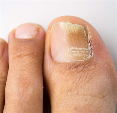 how to treat toenail fungus