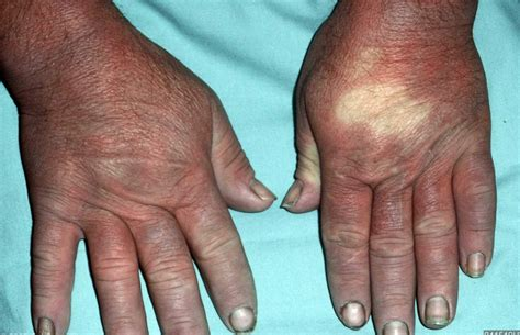 Severe Raynaud Phenomenon Pictures To Pin On Pinterest
