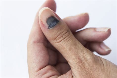 It is one of the harsher side effects of taxotere, and thankfully, i got off it before my nails fell off completely. Nail Trauma Guide: Causes, Symptoms and Treatment Options
