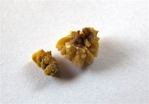 18 Kidney Stone Facts You Need To See To Believe