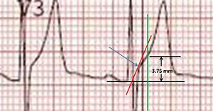 Dr  Smith U0026 39 S Ecg Blog  How To Measure St Elevation At 60