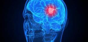 Таблетки от простатита хронического