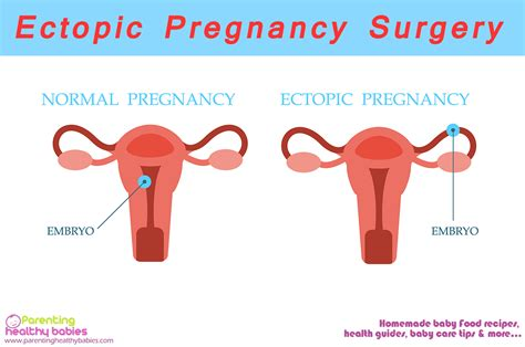 Ultimate Guide For Ectopic Surgery And Recovery Time