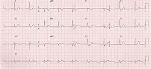 Posterior Myocardial Infarction  U2022 Litfl  Life In The Fast