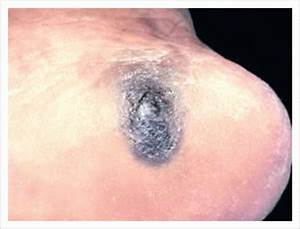 What is skin cancer?: What is Acral lentiginous melanoma