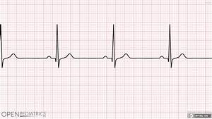 Rhythm Strip: Sinus Bradycardia | OPENPediatrics