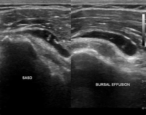 Treatment Of Supraspinatus Tear With Stem