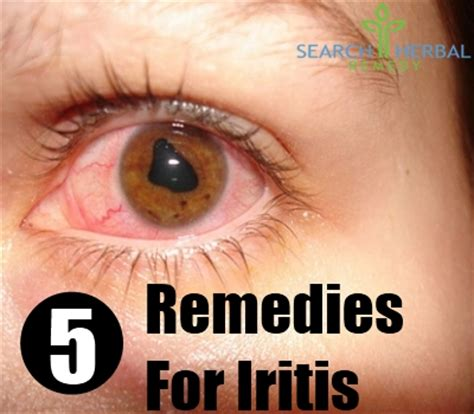 iritis home remedies natural treatments  cure
