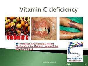 The gallery for --> Vitamin B Deficiency Diseases