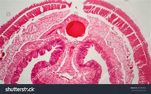 Related Keywords  U0026 Suggestions For Lumbricus Under Microscope