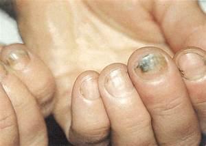 Как вылечить запущенный грибок ногтей на ногах таблетки