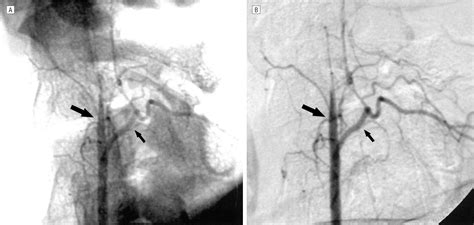 Rubral Lateropulsion Due to Vertebral Artery Dissection in ...