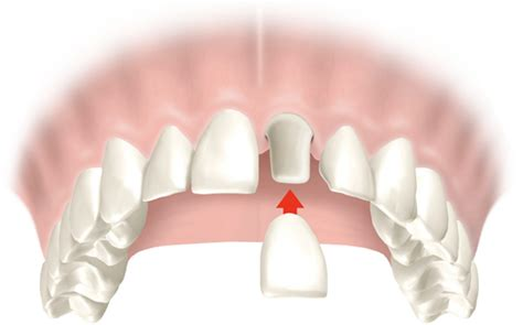 siege social phildar dental crowns crown dental practice 100 images say
