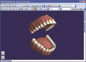 Dental Charting Software and Patient Management Tools ...