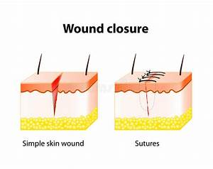 Wound Healing Process With Help Surgical Suture  Stock