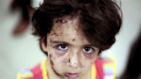 Palestinian Kids Ptsd Could Last Generations