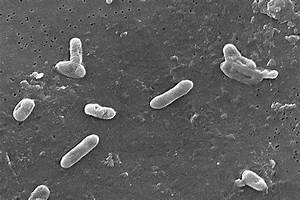Bordetella Bronchiseptica
