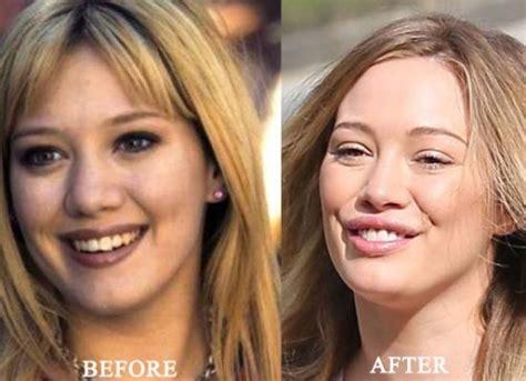 hilary duff plastic surgery   breast implants