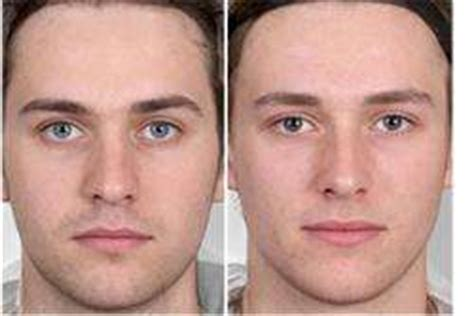 masculine features support extreme male brain theory